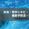 【NHKあさイチ】水虫・背中ニキビ・まつげダニの最新予防法・撃退法(6月5日)
